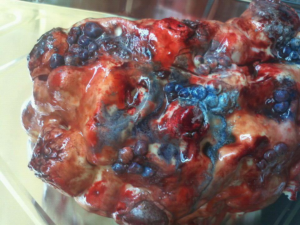 Polycistic Kidney Disease Cake – Eat Your Heart Out